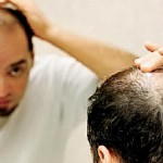 Causes and Remedies to prevent baldness